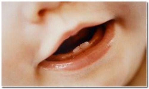 Dentes de leite podem gerar células-tronco para tratamento