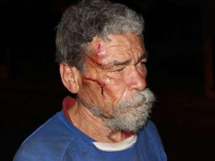 Segundo moradores, João já foi vítima de agressões outras vezes. (Foto: Valdivan Veloso/G1)