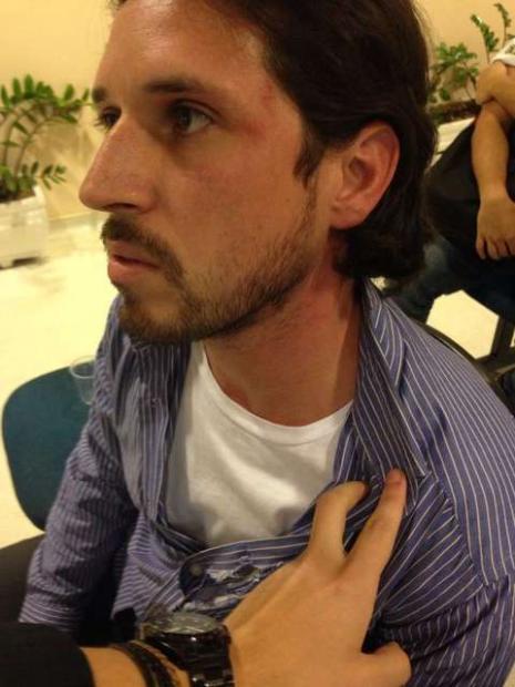 Advogado Daniel Biral mostra marcas após ser detido em SP
