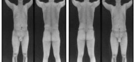 Na imagem da esquerda, homem com a pistola .380 presa em seu joelho; na imagem da direita, pequeno traço da pistola e vista na cintura do homem