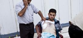 Ayyad é um dos muitos habitantes de Gaza agora necessitam de cuidados de feridas do conflito.