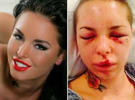 Christy Mack ficou com o rosto deformado após agressão de lutador de MMA