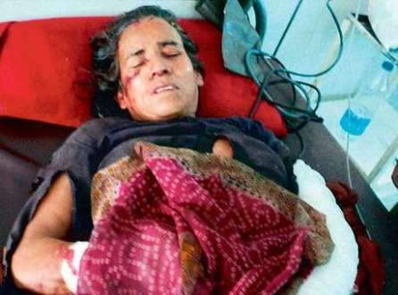 Kamla Devi trabalha no campo e estava voltando para casa, levando seus equipamentos, quando o leopardo a atacou