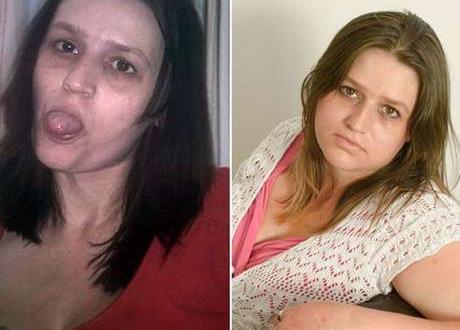Em foto divulgada pela ativista, ela mostra a mudança que passou desde a época do vício até hoje, cinco anos sem a droga