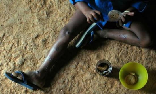 No caso do Brasil, a FAO cita o programa Fome Zero, que tem a participação de 19 ministérios e que ajudou a reduzir a pobreza de 24,3% a 8,4% entre 2001 e 2012