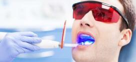 Quando a pessoa já tem um tom mais suave nos dentes, com apenas uma sessão que dura entre 40 minutos e 1h20, ela pode sair do consultório com os dentes brancos e satisfeita