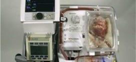 A máquina batizada de 'coração em caixa', que permitiu aos médicos manter o coração próprio para transplante