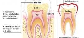 Estudo recente publicado pela Universidade de Adelaide, na Austrália, alerta para os riscos da erosão dentária, desgaste do esmalte provocado pela ação química de ácidos