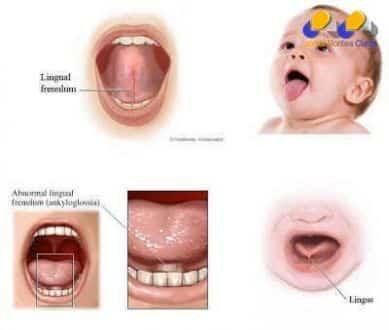 Brasil - Teste da linguinha em recém-nascidos passa a ser obrigatório no país