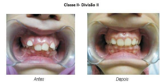 Saúde - Aparelhos odontológicos de silicone reeducam e tratam maus hábitos orais