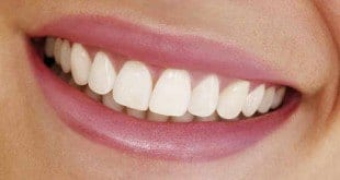 Saúde - Dentes alinhados sem o uso de aparelhos fixos