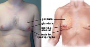 Ginecomastia é uma cirurgia plástica que faz redução mamária masculina.
