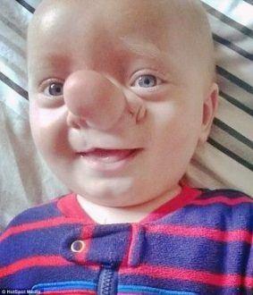 Criança com síndrome rara nasce com parte do cérebro no nariz