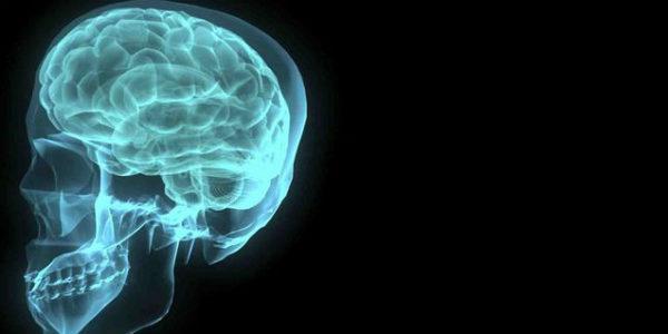 Estudo busca aperfeiçoar o diagnóstico por imagem da esquizofrenia