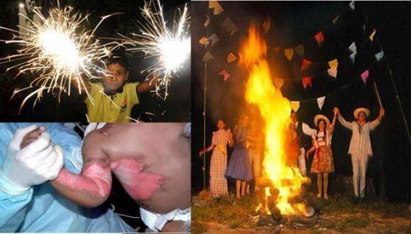 Saúde - Riscos de queimaduras em tempos de Festas Juninas