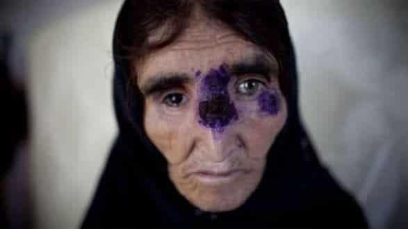 Leishmaniose deixa feridas e pode deformar permanentemente; acima, mulher recebe tratamento em Cabul, no Afeganistão, em 2010