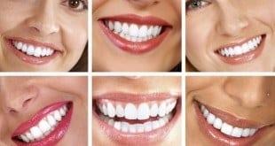 Beleza - O sorriso perfeito é a nova tendência no universo da beleza