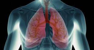 Montes Claros - A cidade de Montes Claros recebe mutirões para avaliação pulmonar gratuita