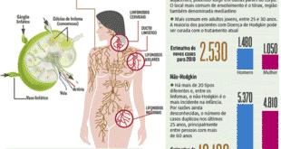 Saúde - Atento aos sinais dos linfomas