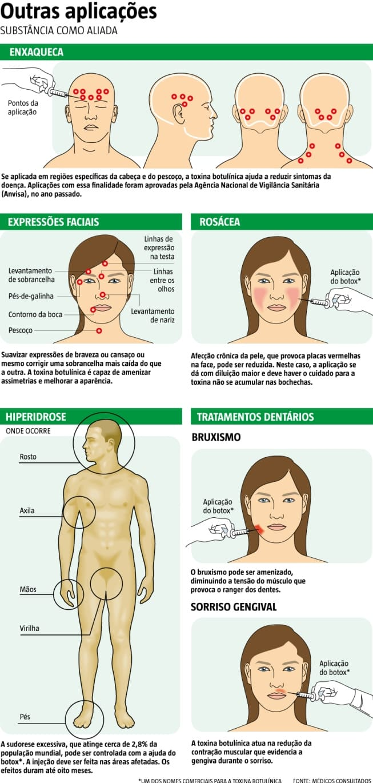 Muito além da estética, botox é capaz de adormecer sintomas de doenças como a enxaqueca