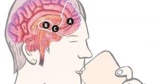 Abuso de álcool na adolescência pode 'deformar' o cérebro
