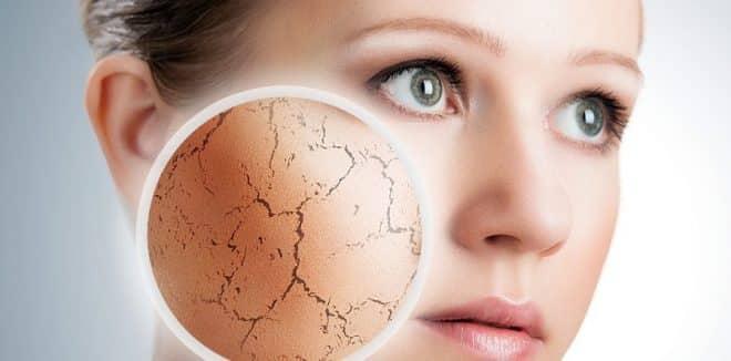 Beleza - Cuidados que você precisa ter com a pele no inverno
