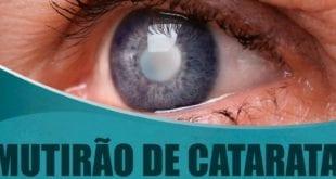 Norte de Minas - Mais 1,5 mil cirurgias de catarata serão feitas no Norte de Minas